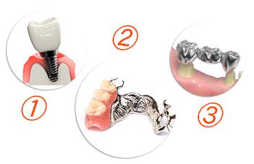歯が欠損した際に行える3つの治療方法